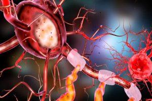 neuron ból w neuropatii